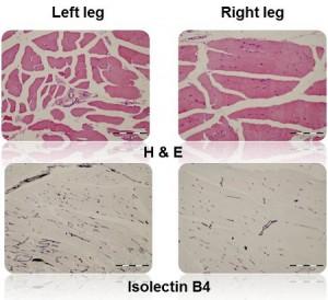 Peripheral Vascular Models efficacy