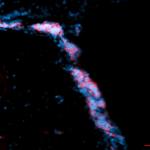 double cornit undif prog neual